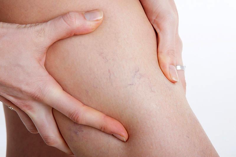 Как лечить сыпь на ногах при варикозе
